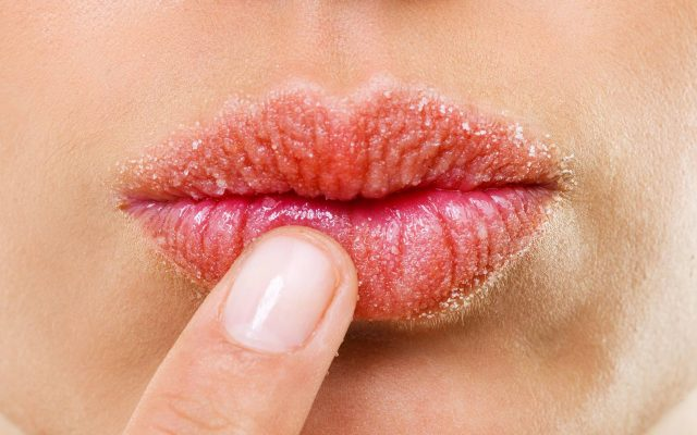How to get rid of chapped and cracked lips?